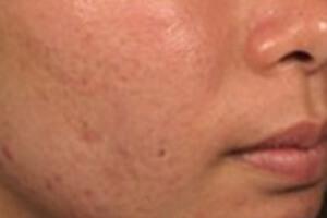 ニキビ跡治療の症例写真 治療後