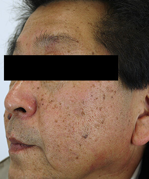 しみ・くすみ・肝斑治療前(左)