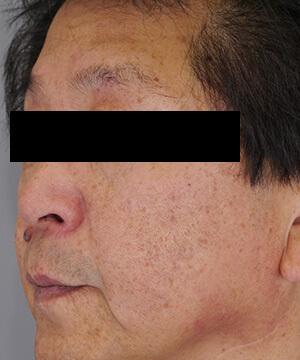しみ・くすみ・肝斑治療後(左)