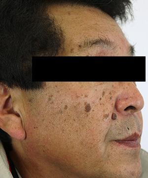 しみ・くすみ・肝斑治療前(右)