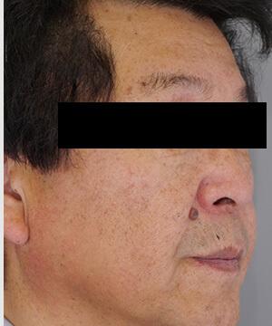 しみ・くすみ・肝斑治療後(右)