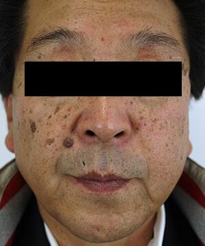 しみ・くすみ・肝斑治療前(前)