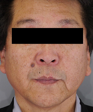しみ・くすみ・肝斑治療後(前)