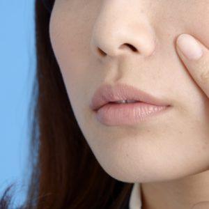 美容皮膚科でのニキビ治療を推奨します